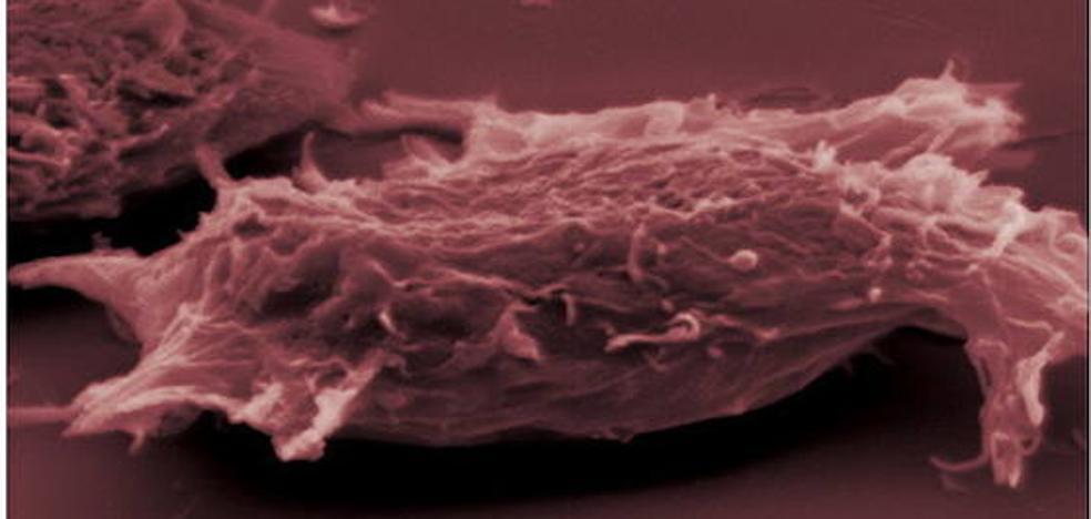 Científicos españoles hallan nuevas claves para el uso de la inmunoterapia contra el cáncer