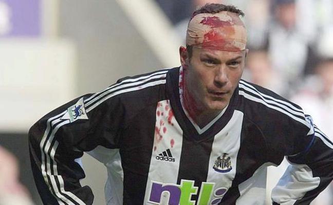 Alan Shearer teme daños cerebrales