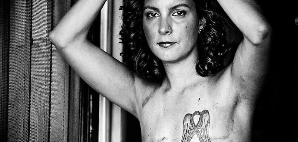 La belleza lastrada por el cáncer de mama