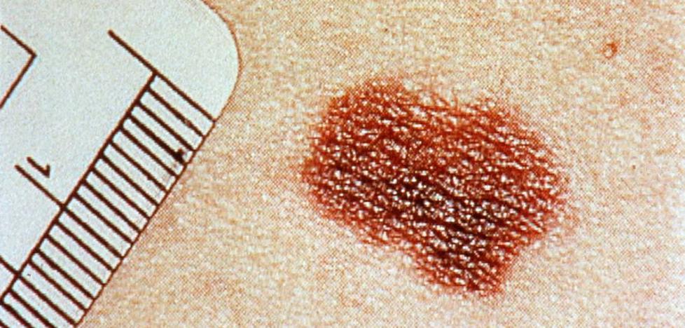 Los expertos piden más atención a los linfomas, cuya mortalidad aumenta un 30%