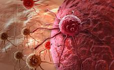 Cada día se diagnostican 94 casos de cáncer de colon