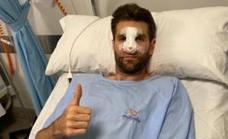 El pivot Jeff Withey, operado de la nariz