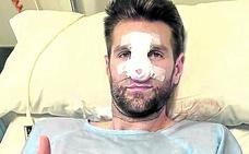Withey será baja ante el Barça por una fractura de nariz