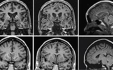 Científicos británicos descubren un fármaco que frena el mal de Huntington