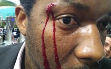 Un actor negro es víctima de una agresión racista en Móstoles: «Puedo matarlo y no me pasaría nada porque soy blanca»
