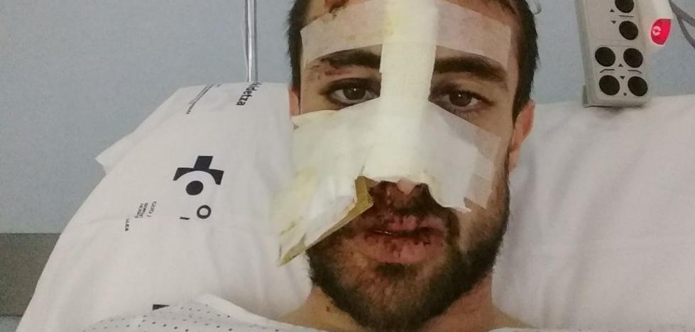 Ander Okamika: «Me confié y me fui contra el coche. Siento mucho el momento que le hice pasar al conductor»