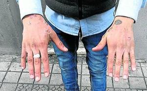 Alerta en Bizkaia por varios brotes de sarna en centros de menores y geriátricos