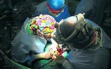 Los mayores de 63 años con infarto superan a las víctimas de tráfico como donantes de órganos