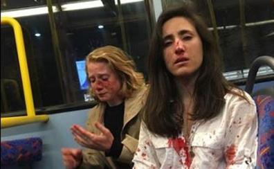 Una chica y su novia sufren una brutal agresión homófoba en un autobús en Londres
