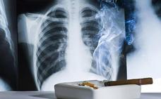 Un escáner a los exfumadores detectaría a tiempo el 85% de los cánceres de pulmón