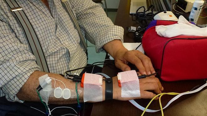 Un guante para controlar el temblor del párkinson