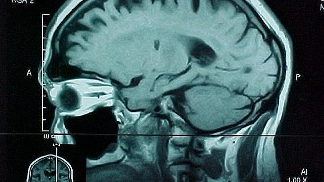 Hallan una variante genética ligada al cáncer cerebral
